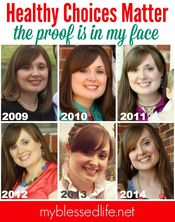 Healthy Choices Matter - The proof is in my face!